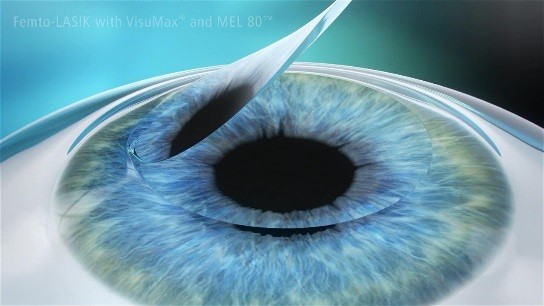 Laser Eye Surgery Cost Hong Kong Lasik Price Smile